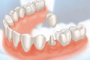 Autotransplante Dentário
