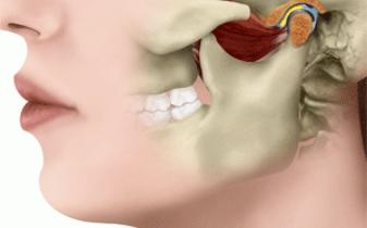 DTM (Disfunção Temporomandibular)