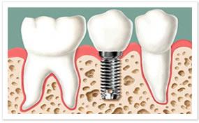 Implantes: Carga Imediata